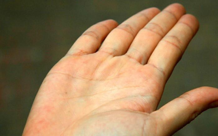 Khi cơ thể gân nổi xanh dự báo sức khỏe như thế nào? 1